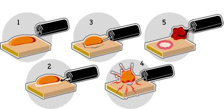 polypectomie mucosectomie coloscopie gastroscopie